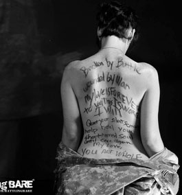 Black and white photo of wife posing for the campaign Battling Bare