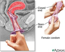 How to use the FC2 Female Condom